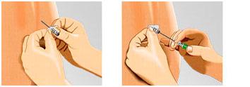 Атравматичная спинальная игла Sprotte (Шпротте) с увеличивающим эффектом. Карандашная спинальная игла Pencil-Point. - Pajunk