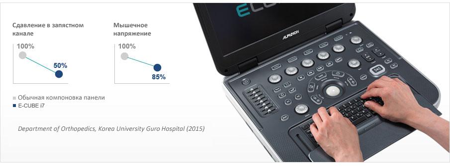 Ультразвуковая система - Alpinion E-CUBE i7